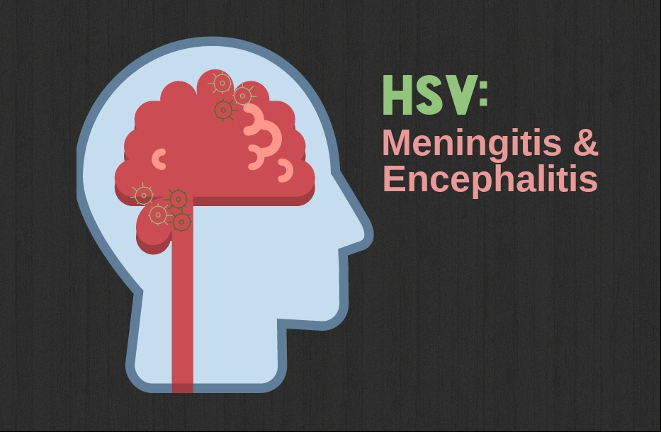 Herpes Can Cause Meningitis and Encephalitis